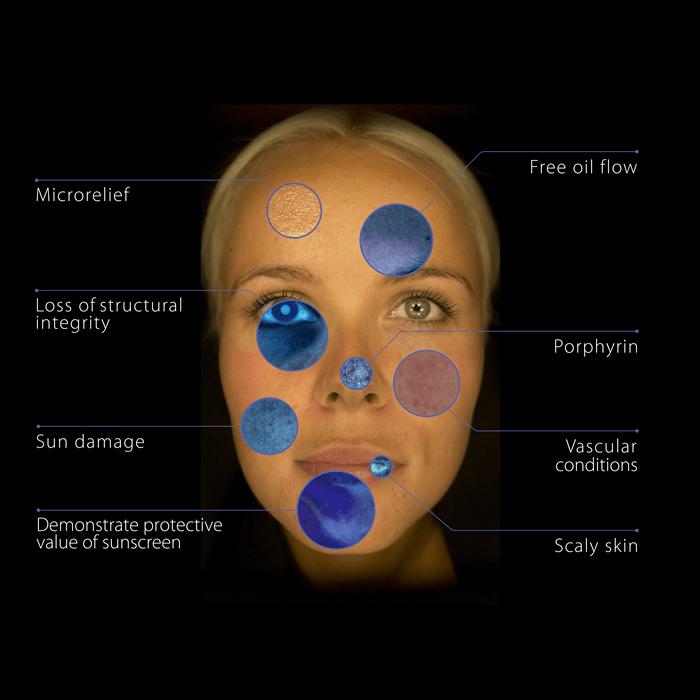Skin Consultation Using the Observ Skin Scanner