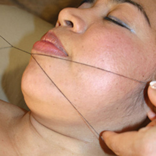 Threading of the Lip and Chin